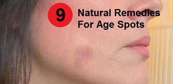 Age-spots-770x297