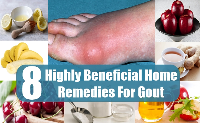 can high uric acid cause heart disease vegetables to remove uric acid food for gout treatment
