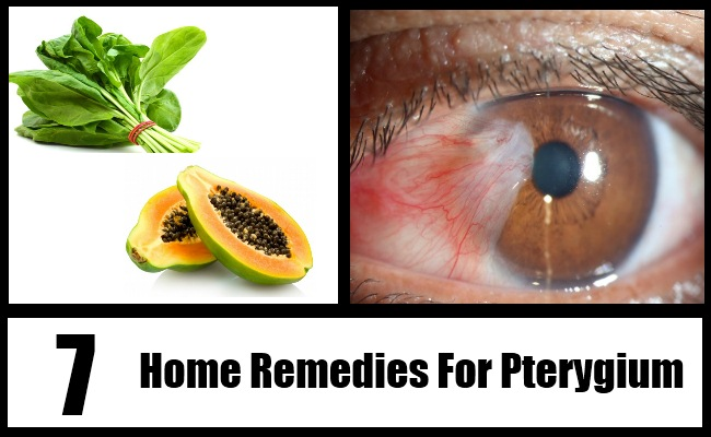 Natural Remedies For Pinguecula