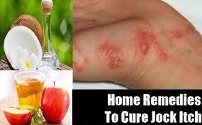 Jock Itch_Home Remedy