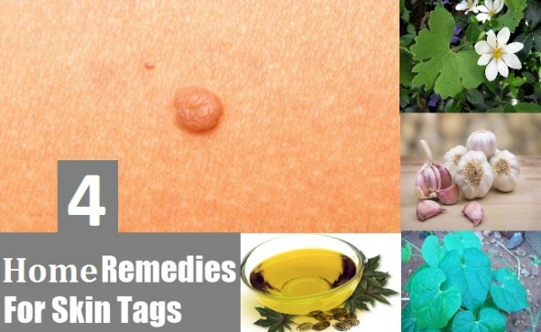 Skin-Tags_Home Remedies