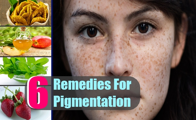 Natural Home Remedies For Skin Pigmentation   Healthy Tips